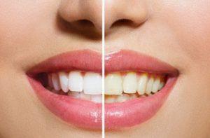 Ini 7 Cara Memutihkan Gigi yang Dijamin Keampuhannya